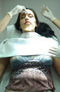 injection acide hyaluronique bouche pulpeuse plis naso géniens médecin esthetique Lausanne